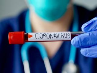 २५ जनामा थप कोरोना संक्रमण, संक्रमित संख्या पुग्यो ४२७